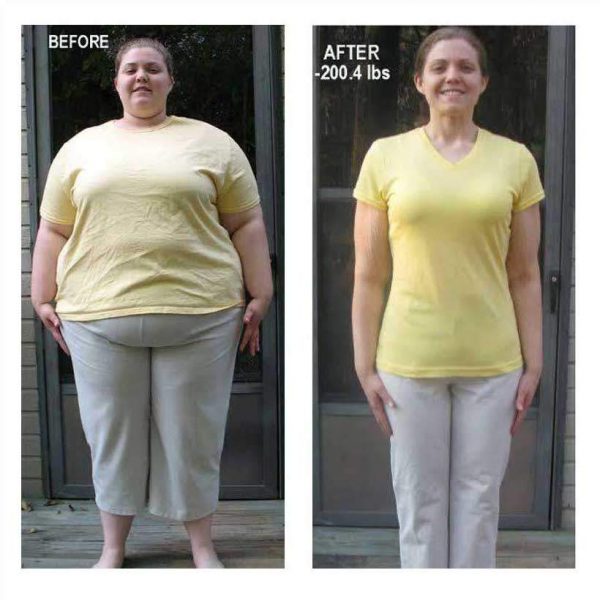HCG Diet Review 03: 200.4 lbs Loss on The HCG Diet